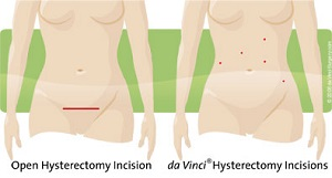 incision comparison of open surgery vs robotic surgery for hysterectomy